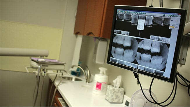 Dental office image of screen with x-rays of teeth